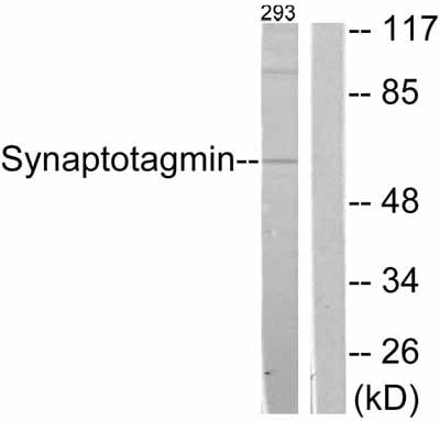 Western blot - Anti-Synaptotagmin antibody (ab51164)