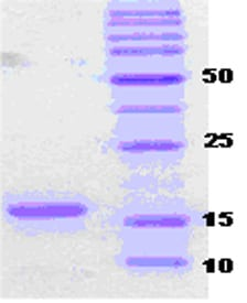 SDS-PAGE - Recombinant Human Alpha-synuclein (mutated A30 P + A53 T) protein (ab51183)