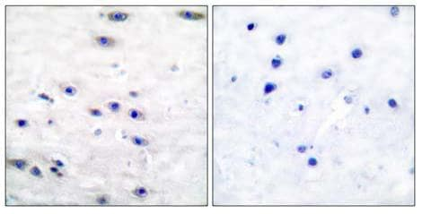 Immunohistochemistry paraffin embedded sections - Anti-Tyrosine Hydroxylase antibody (ab51191)