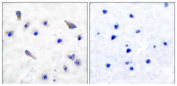Immunohistochemistry (Formalin/PFA-fixed paraffin-embedded sections) - Anti-Tyrosine Hydroxylase (phospho S19) antibody (ab51194)