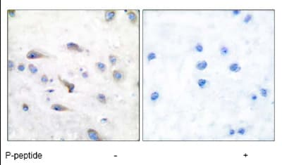 Immunohistochemistry (Formalin/PFA-fixed paraffin-embedded sections) - Anti-MAP3K8 (phospho T290) antibody (ab51214)