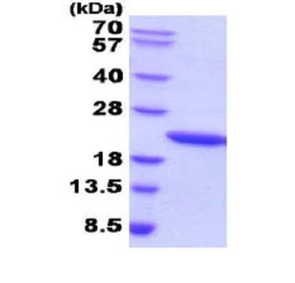 SDS-PAGE - Recombinant human Growth Hormone protein (Active) (ab51232)