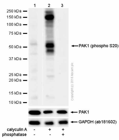 Western blot - Anti-PAK1 (phospho S20) antibody [EP655Y] (ab51244)