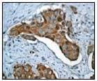 Immunohistochemistry (Formalin/PFA-fixed paraffin-embedded sections) - Anti-PRC1 antibody [EP1513Y] (ab51248)