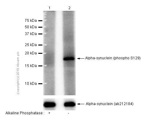 Western blot - Anti-Alpha-synuclein (phospho S129) antibody [EP1536Y] (ab51253)