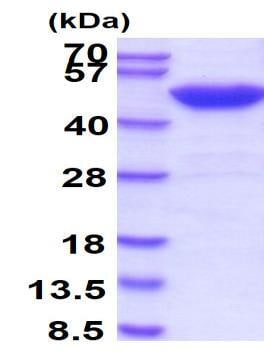 SDS-PAGE - Recombinant Human SET7 protein (ab51285)
