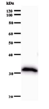 Western blot - Anti-Calpain 7 antibody [2107C3a] (ab51293)