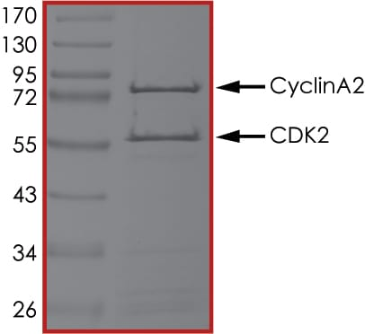 SDS-PAGE - Recombinant human CDK2 + Cyclin A2 protein (ab51407)
