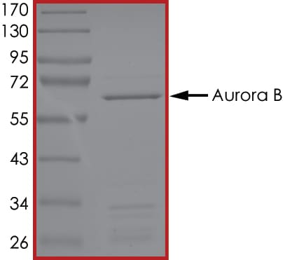 SDS-PAGE - Recombinant human MST3 protein (ab51413)