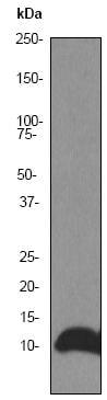 Western blot - Anti-DYNLL1/PIN antibody [EP1660Y] (ab51603)