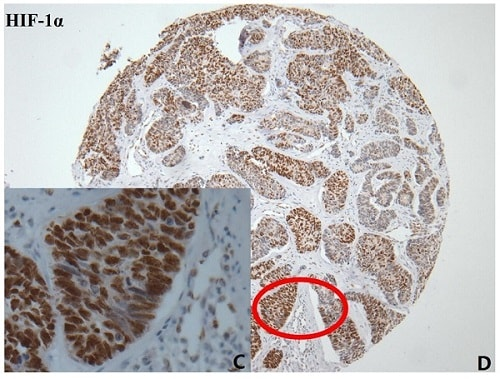Immunohistochemistry (Formalin/PFA-fixed paraffin-embedded sections) - Anti-HIF-1 alpha antibody [EP1215Y] (ab51608)