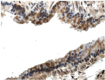 Immunohistochemistry (Formalin/PFA-fixed paraffin-embedded sections) - Anti-PLGF antibody [RM0010-8F09] (ab51654)
