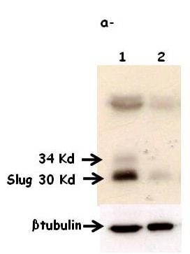 Western blot - Anti-SLUG antibody [mAbcam51772] (ab51772)