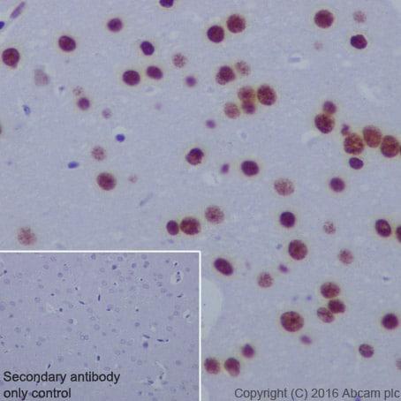 Immunohistochemistry (Formalin/PFA-fixed paraffin-embedded sections) - Anti-Histone H4 (acetyl K5) antibody [EP1000Y] - ChIP Grade (ab51997)