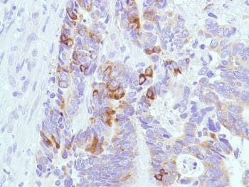 Immunohistochemistry (Formalin/PFA-fixed paraffin-embedded sections) - Anti-MUC2 antibody [SPM513], prediluted (ab52130)