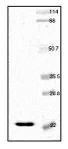 SDS-PAGE - Recombinant Human H-FABP protein (ab52149)