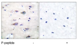 Immunohistochemistry (Formalin/PFA-fixed paraffin-embedded sections) - Anti-Ionotropic Glutamate receptor 2 (phospho S880) antibody (ab52180)