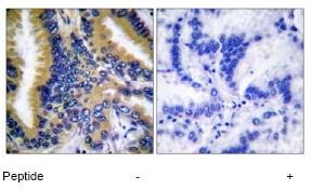 Immunohistochemistry (Formalin/PFA-fixed paraffin-embedded sections) - Anti-Bik antibody (ab52182)