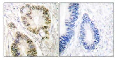 Immunohistochemistry (Formalin/PFA-fixed paraffin-embedded sections) - Anti-Cyclin E1 (phospho T395) antibody (ab52195)