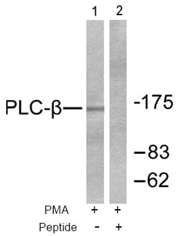 Western blot - Anti-Phospholipase C beta 3/PLCB3 antibody (ab52199)