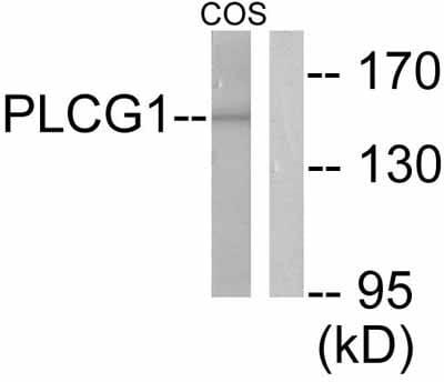 Western blot - Anti-Phospholipase C gamma 1/PLC-gamma-1 antibody (ab52200)