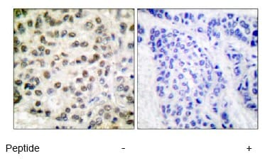 Immunohistochemistry (Formalin/PFA-fixed paraffin-embedded sections) - Anti-RNA polymerase II CTD repeat YSPTSPS antibody (ab52202)