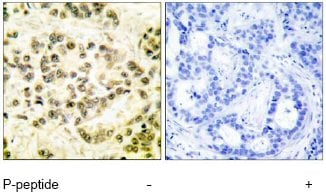 Immunohistochemistry (Formalin/PFA-fixed paraffin-embedded sections) - Anti-STAT5b (phospho S731) antibody (ab52211)
