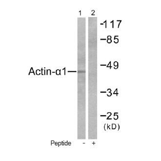 Western blot - Anti-Alpha Skeletal Muscle Actin antibody (ab52218)