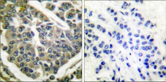 Immunohistochemistry (Formalin/PFA-fixed paraffin-embedded sections) - Anti-Collagen IV antibody (ab52235)