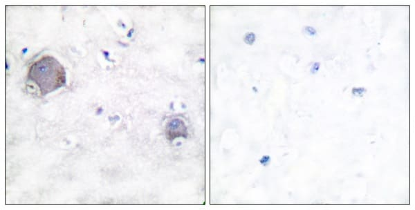 Immunohistochemistry (Formalin/PFA-fixed paraffin-embedded sections) - Anti-activated Notch1 antibody (ab52301)