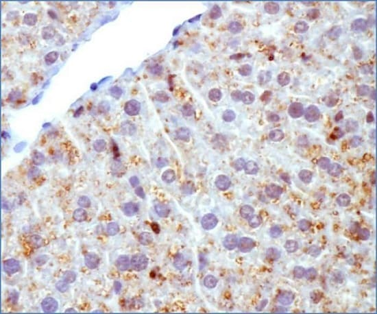Immunohistochemistry (Formalin/PFA-fixed paraffin-embedded sections) - Anti-ADFP antibody (ab52356)