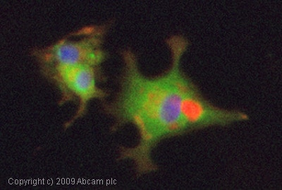 Immunocytochemistry/ Immunofluorescence - Anti-CaMKII antibody [EP1829Y] (ab52476)