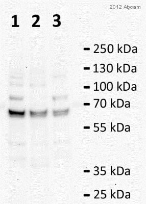 Western blot - Anti-Catalase antibody - Peroxisome Marker (ab52477)