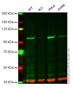 Western blot - Anti-FER antibody [EP1842Y] (ab52479)