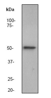 Western blot - Anti-Integrin linked ILK antibody [EP1593Y] (ab52480)
