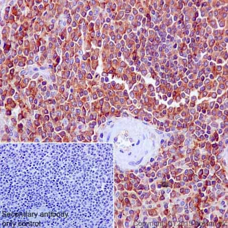 Immunohistochemistry (Formalin/PFA-fixed paraffin-embedded sections) - Anti-Moesin antibody [EP1863Y] (ab52490)