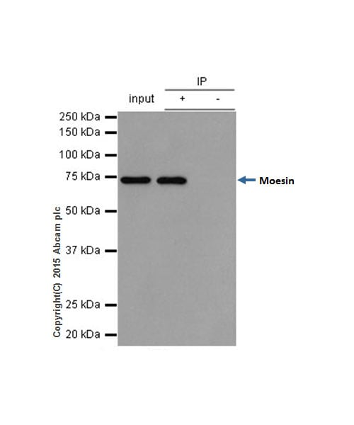 Immunoprecipitation - Anti-Moesin antibody [EP1863Y] (ab52490)