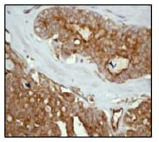 Immunohistochemistry (Formalin/PFA-fixed paraffin-embedded sections) - Anti-Radixin/RDX antibody [EP1862Y] (ab52495)