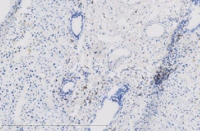 Immunohistochemistry (Frozen sections) - Anti-PD1 antibody [NAT105] (ab52587)