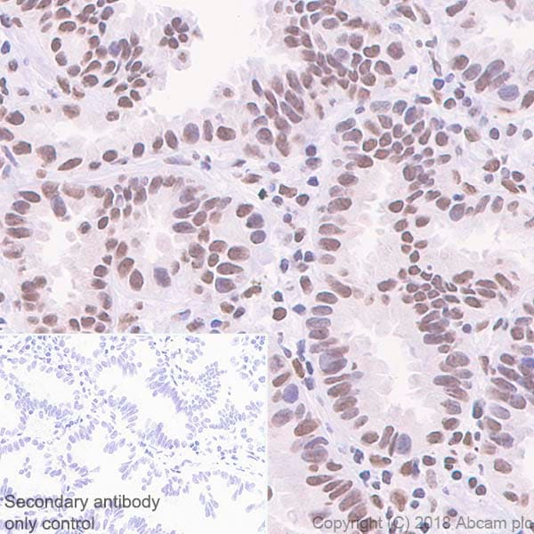 Immunohistochemistry (Formalin/PFA-fixed paraffin-embedded sections) - Anti-hnRNP K antibody [EP943Y] (ab52600)