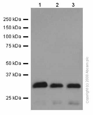 Western blot - Anti-Prion protein PrP antibody [EP1802Y] (ab52604)