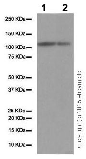 Western blot - Anti-Androgen Receptor antibody [EP670Y] (ab52615)