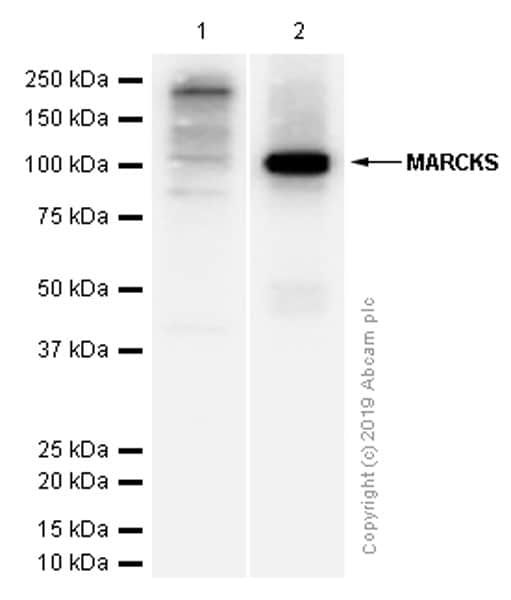 Western blot - Anti-MARCKS antibody [EP1446Y] (ab52616)