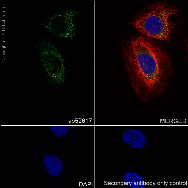 Immunocytochemistry/ Immunofluorescence - Anti-ABCG1 antibody [EP1366Y] (ab52617)
