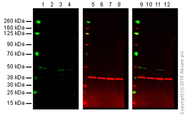 Western blot - Anti-MKK7 antibody [EP1455Y] (ab52618)