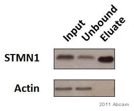 Immunoprecipitation - Anti-Stathmin 1 antibody [EP1573Y] (ab52630)