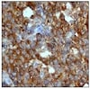 Immunohistochemistry (Formalin/PFA-fixed paraffin-embedded sections) - Anti-Stathmin 1 antibody [EP1573Y] (ab52630)