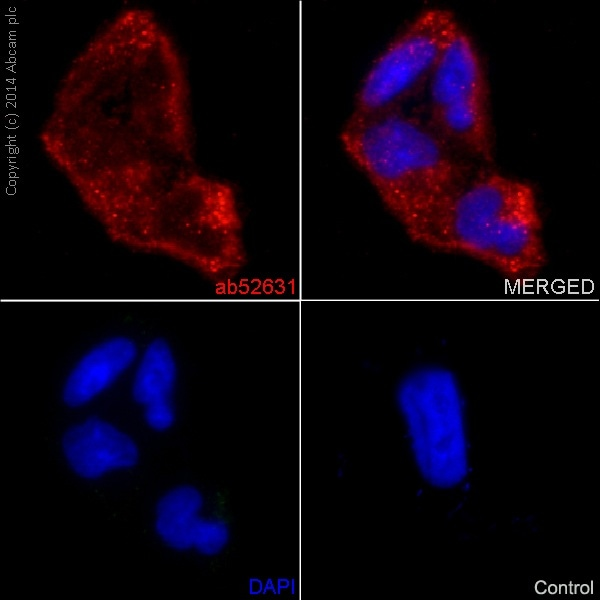 Immunocytochemistry/ Immunofluorescence - Anti-MMP1 antibody [EP1247Y] (ab52631)