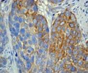 Immunohistochemistry (Formalin/PFA-fixed paraffin-embedded sections) - Anti-MMP1 antibody [EP1247Y] (ab52631)