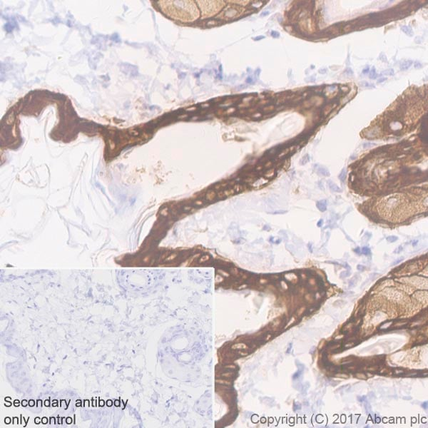 Immunohistochemistry (Formalin/PFA-fixed paraffin-embedded sections) - Anti-Cytokeratin 5 antibody [EP1601Y] - Cytoskeleton Marker (ab52635)